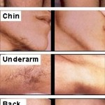 Laser_Hair_Removal_Penticton