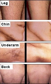 Laser_Hair_Removal_Penticton