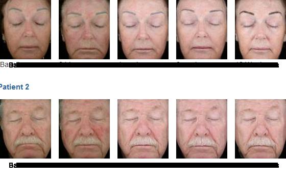Levulan Actinic Keratosis And Acne Renew Laser Amp Skin