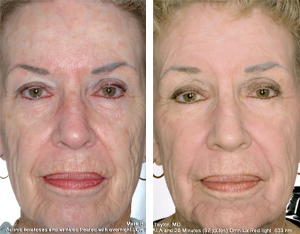 Levulan Actinic Keratosis And Acne Renew Laser And