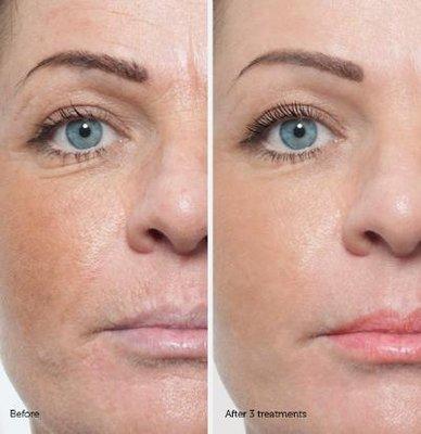 Microdermabrasion – Renew Laser & Skin Clinic