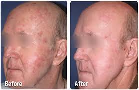 Profractional Laser Skin Resurfacing2