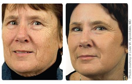 Profractional Laser Skin Resurfacing Renew Laser Amp Skin