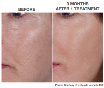 NANO_Laser_peel_at_front_street_laser_and_skincare_penticton