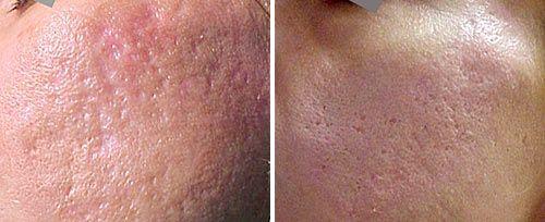 acne scar removal penticton