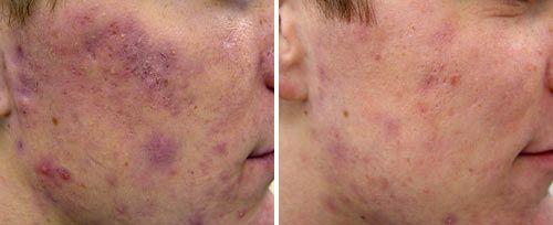 acne removal penticton