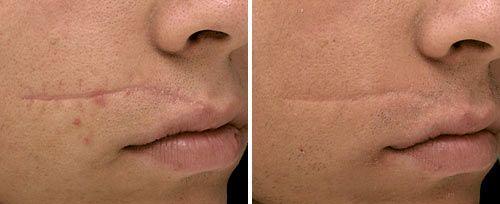 facial scar treatment penticton