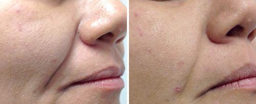 penticton laser treatments