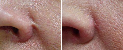 scar treatment penticton