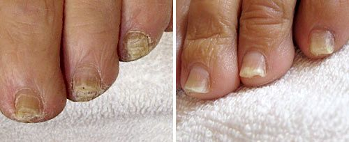 toenail fungus treatments penticton