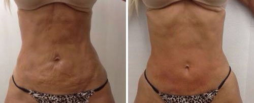 TightSculpting Before and After