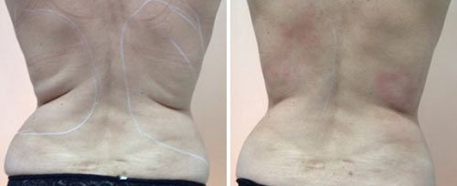 tightsculpting_before_after